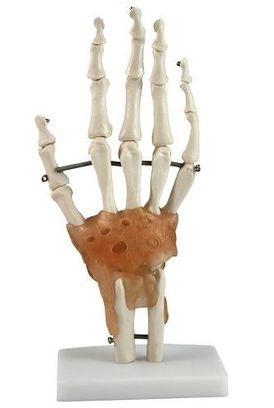 hand en pols pijn arnhem